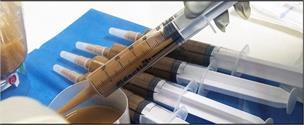 پیوند مدفوع باعث بهبود سریع بیماران کووید۱۹ میشود
