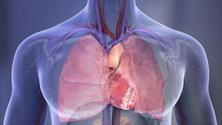 ۲۰درصد بزرگسالان با جراحیهای غیرقلبی دچار آسیب قلبی میشوند/راه حل مانیتورینگ متوالی آنزیم قلب است